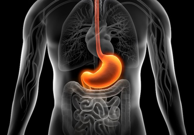 Heartburn and Acid Reflux or GERD