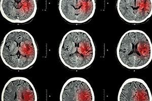 Brain scan, CT Scan